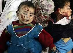 anak-palestina-korban-israel